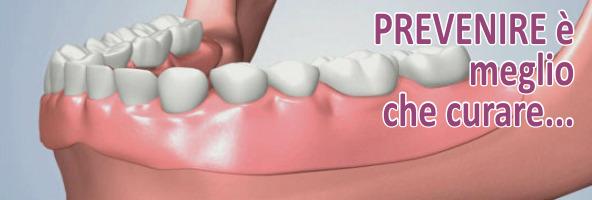 Il concetto di riabilitazione protesica Anche la perdita di un solo dente può portare a diverse conseguenze negative ed è bene correre prontamente ai ripari se sfortunatamente si è perso un dente..