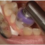 Ozono sul dente